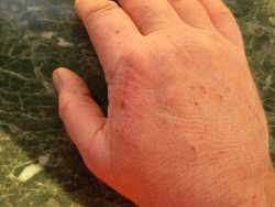 Healing a hand scratch with aloe