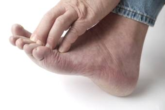 Diabetic Peripheral Neuropathy and Foot Ulcers