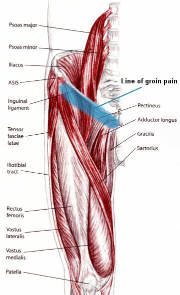 Groin Pain, Groin Strain Treatment. Upper Thigh Pain, Hip Pain ...