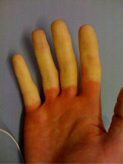 Hands blue from the cold may be caused by Raynaud's Syndrome