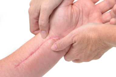 Treatment for scarred, dysfunctional limbs