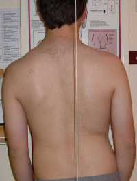 Scoliosis Treatment November 2008