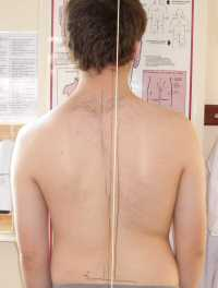 Scoliosis Treatment January 2009