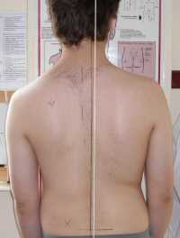 Scoliosis Treatment February 2009