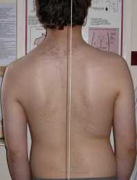 Scoliosis Treatment April 2009