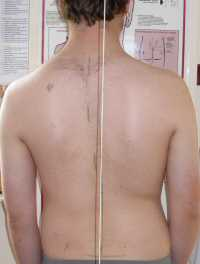 Scoliosis Treatment May 2009