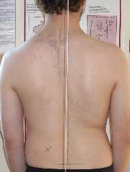 Scoliosis Treatment July 2009