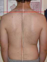 Scoliosis Treatment November 2009