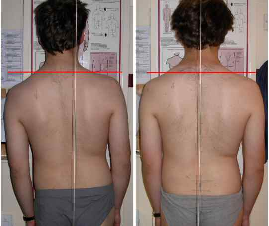 Scoliosis Comparison of Treatments Start to End